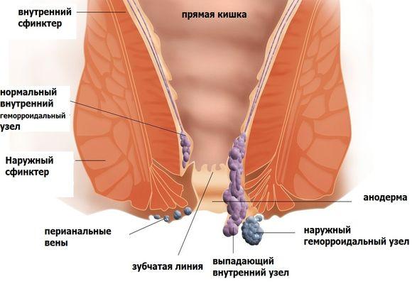хронический геморрой лечение