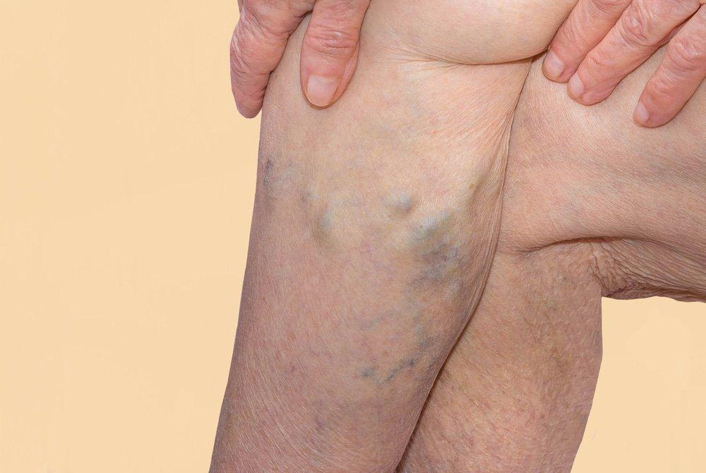 Лечение варикоза геморроя