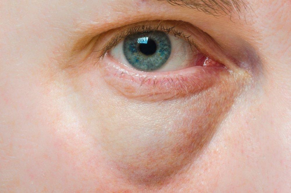 Отечность вокруг глаз