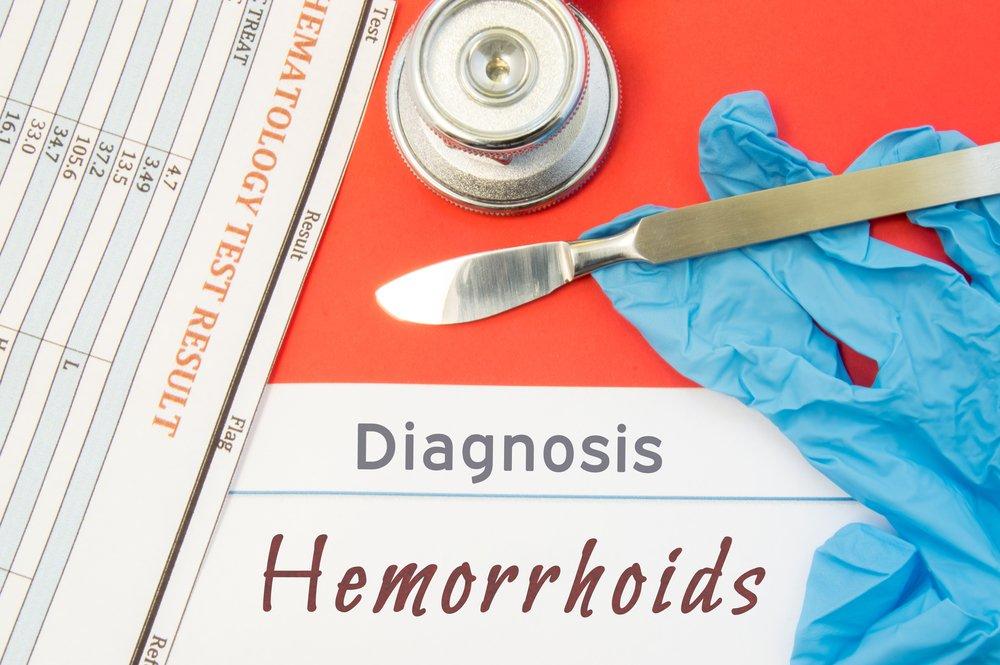 Основные способы лечения геморроя