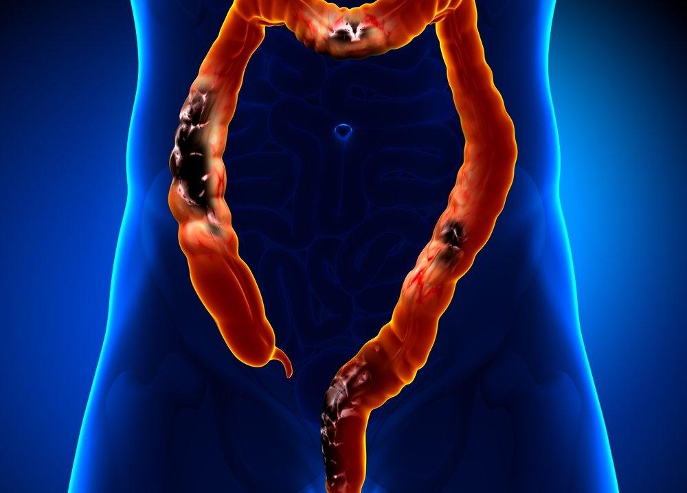 Приводит ли геморрой к раку